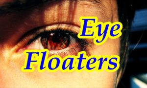 What are Floaters in the Eyes or Spots in Vision - TripoliClinic.com