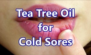 Tea Tree Oil for Cold Sores