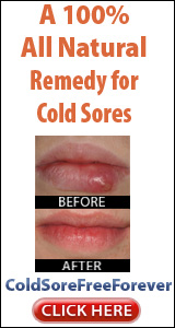 How to get rid of cold sores overnight tripoli clinic fastest way to get rid of a cold sore ccuart Images