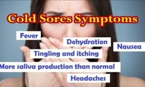 Cold Sores Symptoms - How Long Do Cold Sores Last