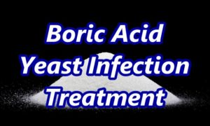 How to Use Boric Acid for Yeast Infection Home Cure