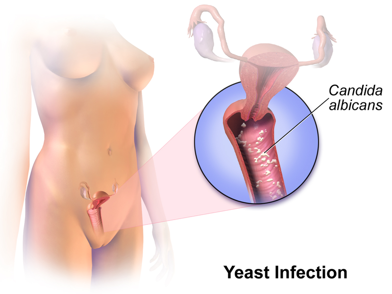 Vaginal Yeast Infection