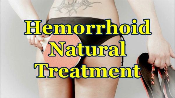 How to Get Rid of Hemorrhoids Using Natural Treatment