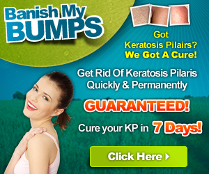 how to get rid of keratosis pilaris