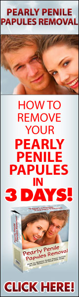 remove pearly penile papules in 3 days
